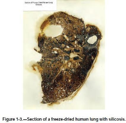 Файл:Обеспыливание при добыче угля в шахах США. Фиг. 1.3 Часть лиофилизированного лёгкого человека, болевшего силикозом.jpg