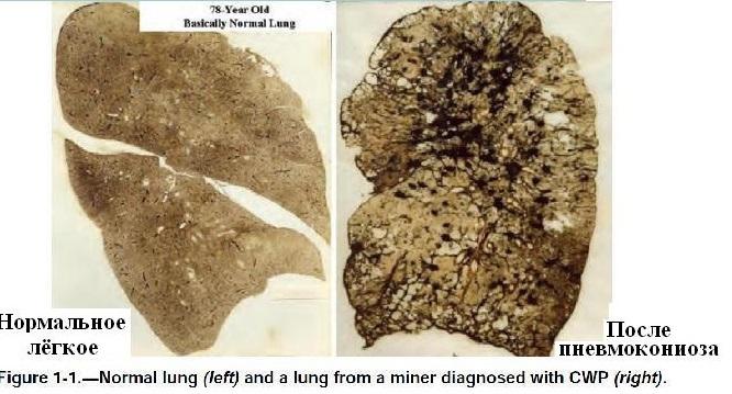 Файл:Обеспыливание при добыче угля в шахах США. Фиг. 1.1 Лёгкое нормального человека и человека, болевшего пневмокониозом.jpg