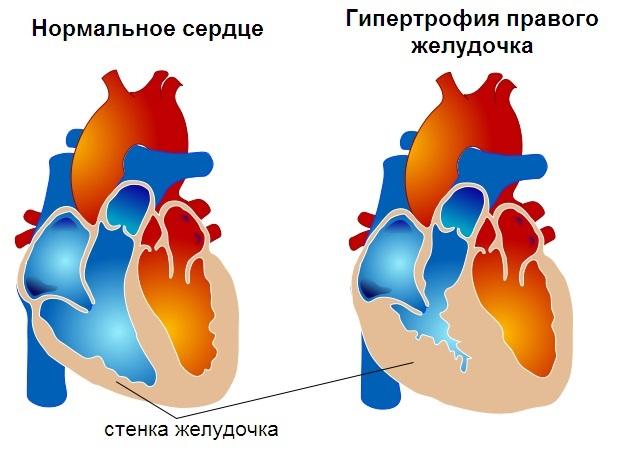 Файл:Гипертрофия правого желудочка-схема.jpg