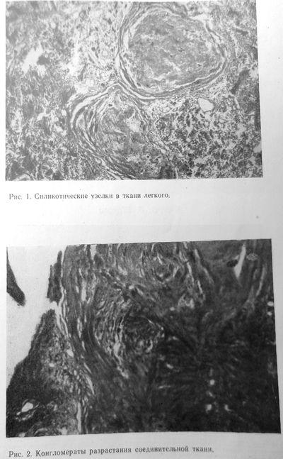 Силикотические узелки, изменения соединительной ткани
