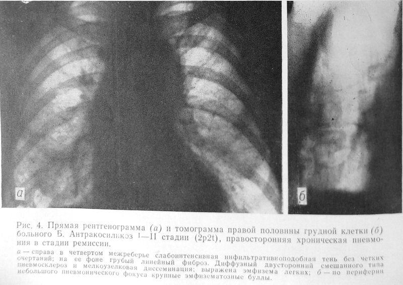 Файл:1984 Антракосиликоз-4.jpg