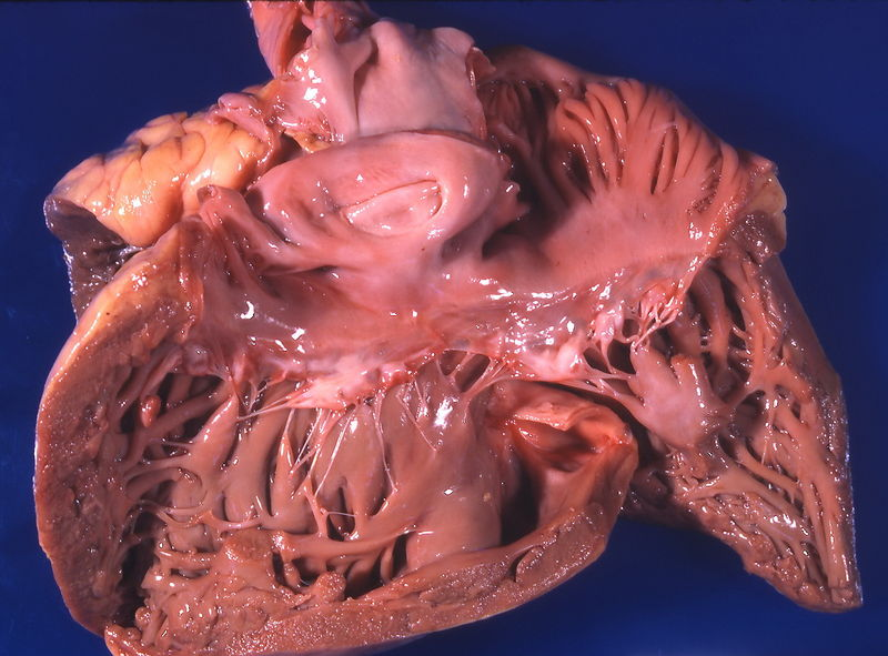 Файл:Гипертрофия правого желудочка.jpg