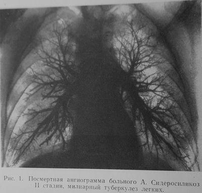 Сидеросиликоз II стадия, милиарный туберкулёз лёгких