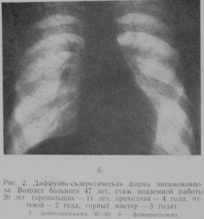 Пневмокониоз, диффузно-склеротическая форма