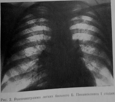 Пневмокониоз I стадии