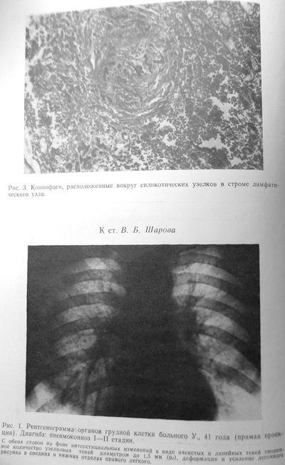 Силикотические узелки, пневмокониоз I-II стадии