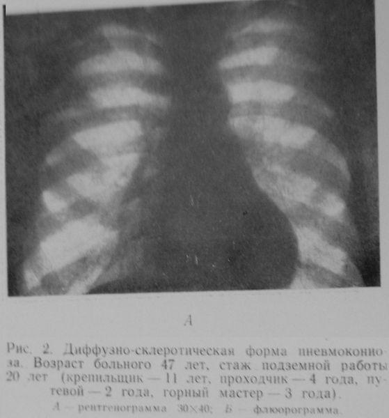 Файл:1962-А Пневмокониоз (подмосковный угольный бассейн).jpg