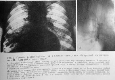 Антракосиликоз I стади