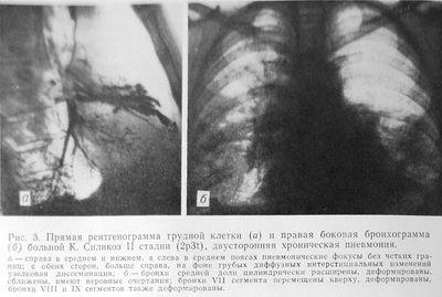 Силикоз II стадии, двусторонняя хроническая пневмония