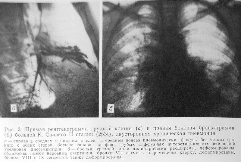 Файл:1984 Антракосиликоз-3.jpg