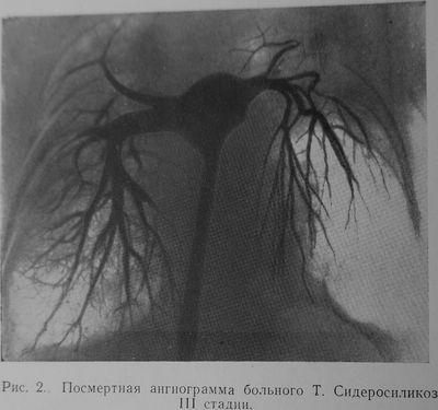 Сидеросиликоз III стадии